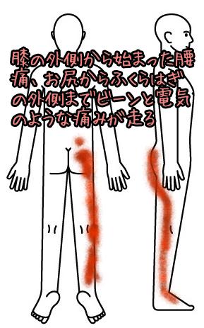 腰痛005