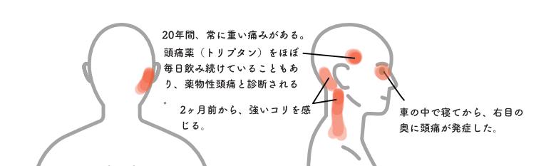 頭痛014
