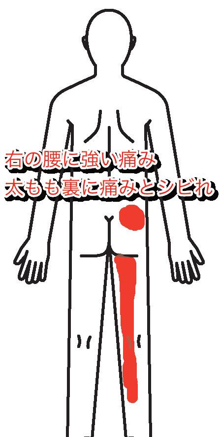 腰痛013