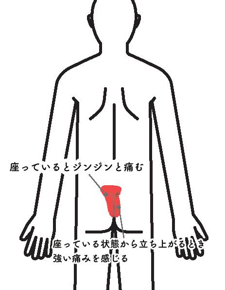 腰痛015_2