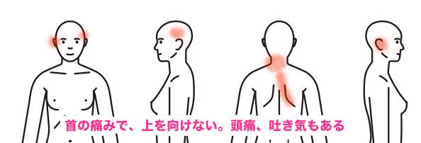 人体女首の症例2