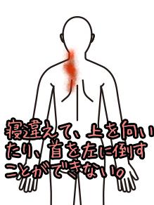 首の症例008