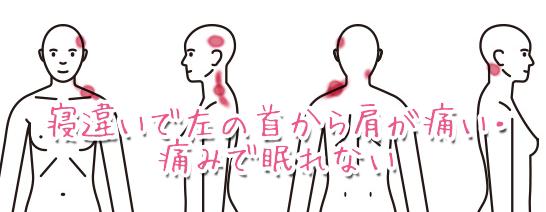 首の痛み004