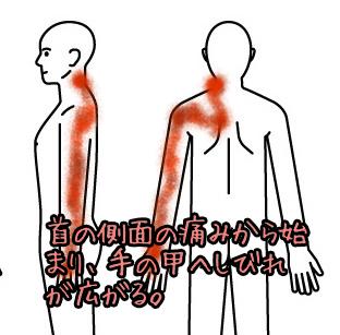 首の痛み007