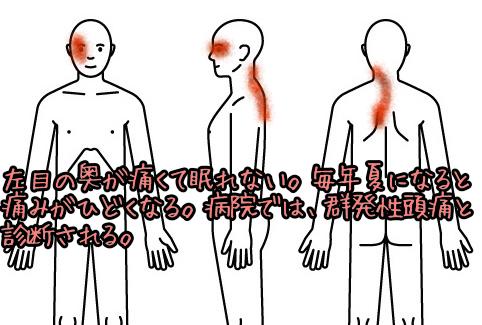 頭痛002