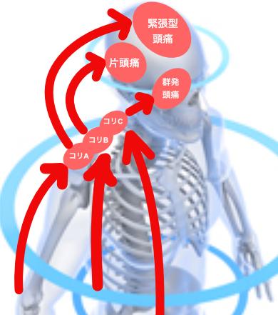 頭痛の原因003