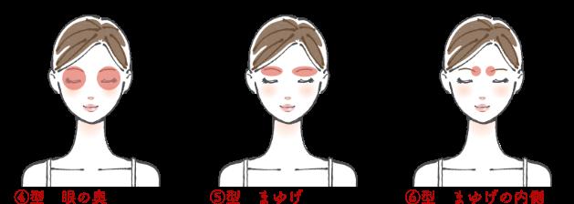 頭痛4〜6