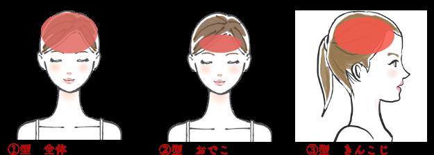 頭痛分類1~3
