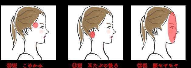 頭痛10〜12