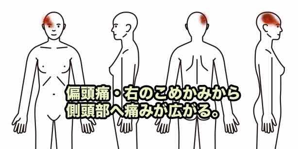 頭痛010