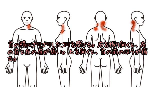 肩こり治療例14