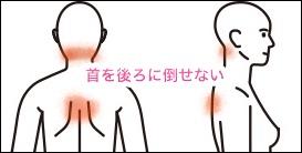 人体女 首の痛み症例8jpg