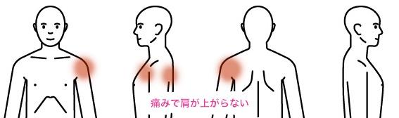 人体男origin 症例7