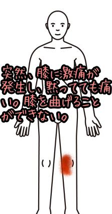 膝痛002
