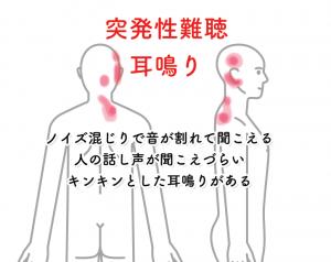 突発性難聴003