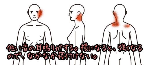 耳鳴り001