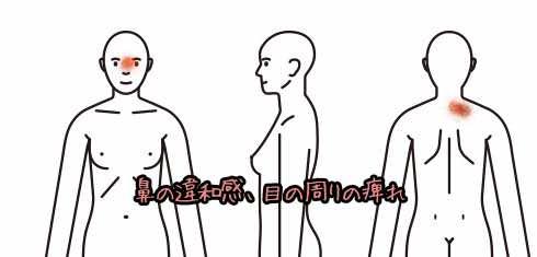 その他001