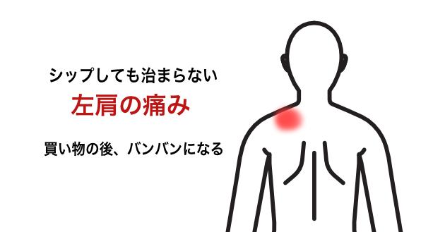 シップをしても治まらない左肩の痛み