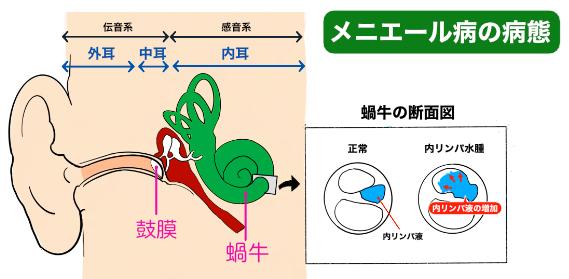メニエール病の説明内リンパ水腫について札幌の快気堂鍼灸院白石