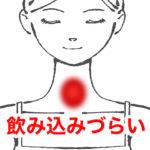 喉の違和感の症例ヒステリー球