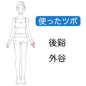 低音障害型感音難聴症例2ツボ