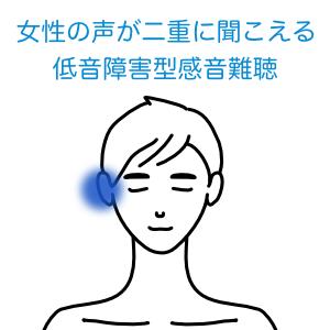 低音障害型感音性難聴1見出し